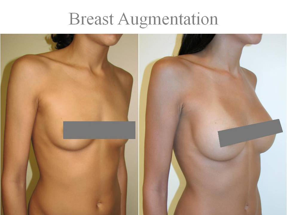Silicone breast implants 2006