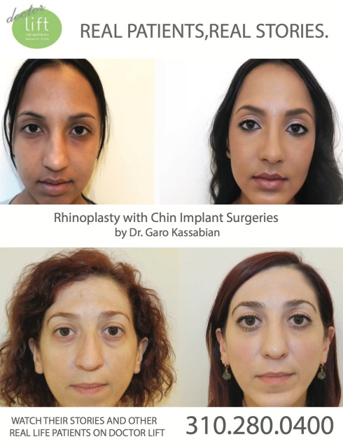 Rhinoplasty with Chin Implant
