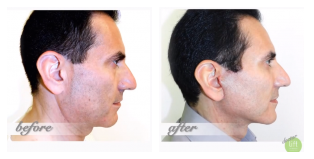 Beverly hills lift and firm cream reviews newhairstylesformen2014