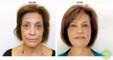 Injectables reverse years of f of one's face with no down time.  This patient only had injectables and she looks fabulous!