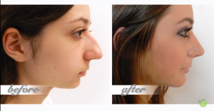 Rhinoplasties will be amongst the most popular procedures in 2015.  It's easy to see why! Take a look at what an incredible transformation this young woman under went!
