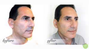 A blepharoplasty, or eyelid lift, instantly turns back the hands of time and gives a refreshed and awake look back to the face!
