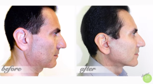 Facelift_liftmd
